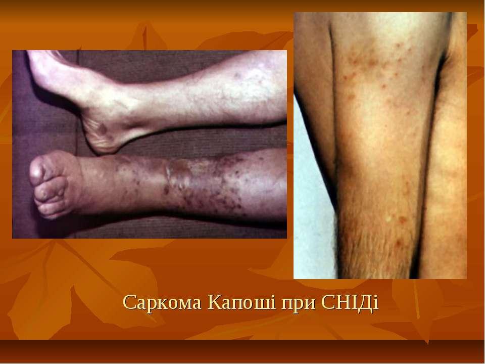 Саркома Капоші при СНІДі