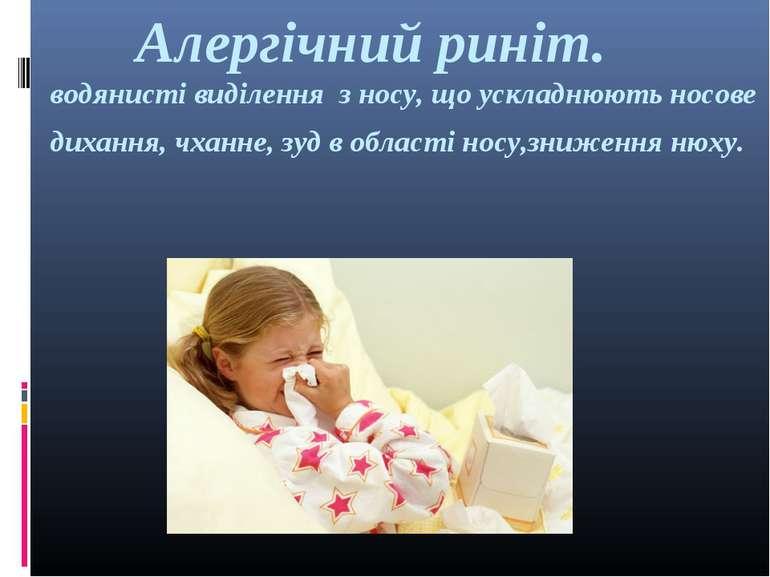 Алергічний риніт. водянисті виділення з носу, що ускладнюють носове дихання, ...
