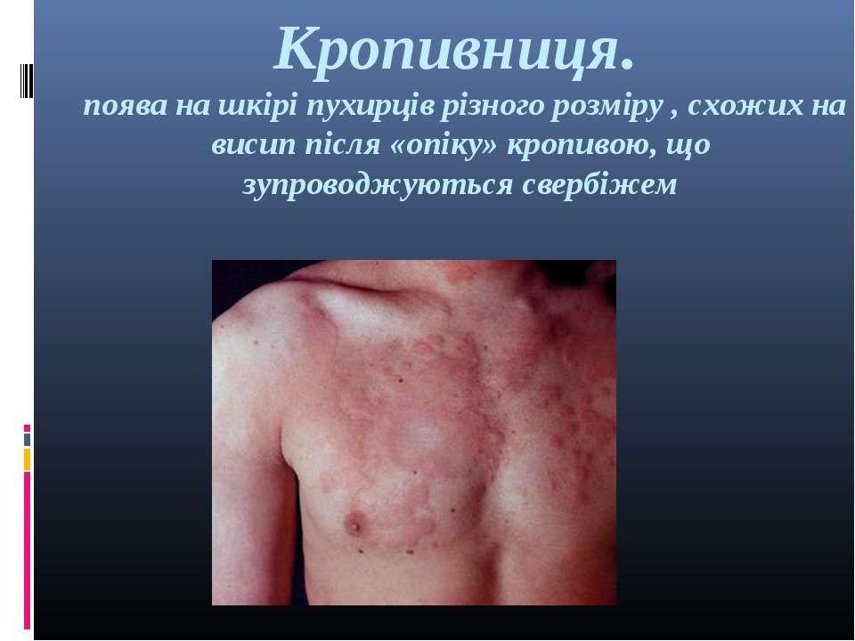 Кропивниця. поява на шкірі пухирців різного розміру , схожих на висип після «...