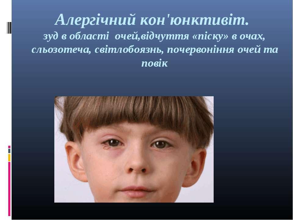Алергічний кон'юнктивіт. зуд в області очей,відчуття «піску» в очах, сльозоте...