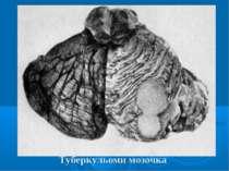 Туберкульоми мозочка