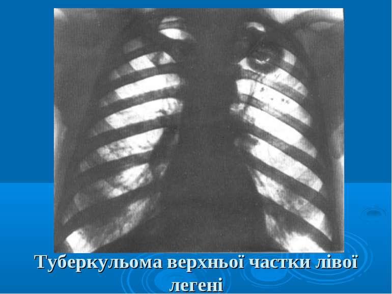 Туберкульома верхньої частки лівої легені