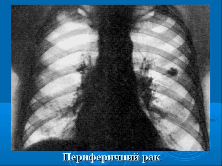 Периферичний рак