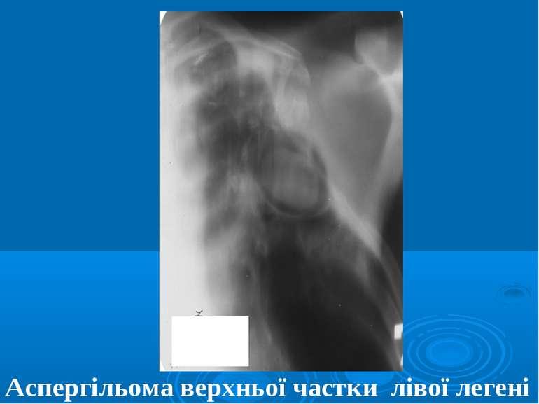 Аспергільома верхньої частки лівої легені