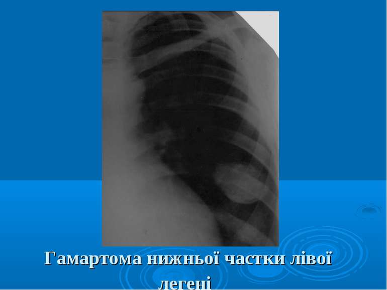 Гамартома нижньої частки лівої легені