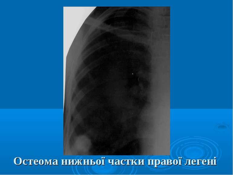 Остеома нижньої частки правої легені