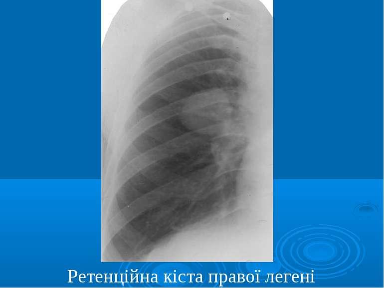 Ретенційна кіста правої легені