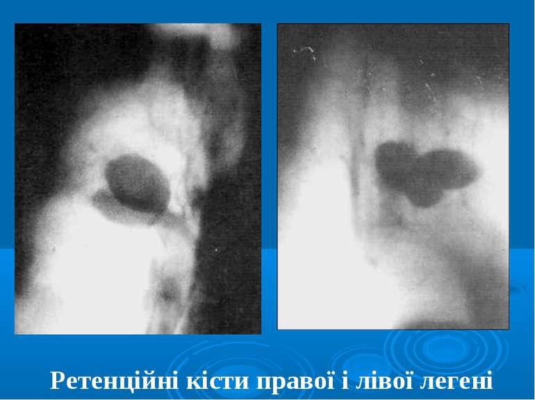 Ретенційні кісти правої і лівої легені