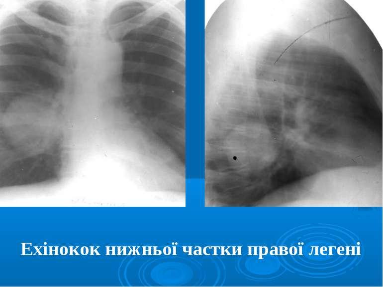 Ехінокок нижньої частки правої легені