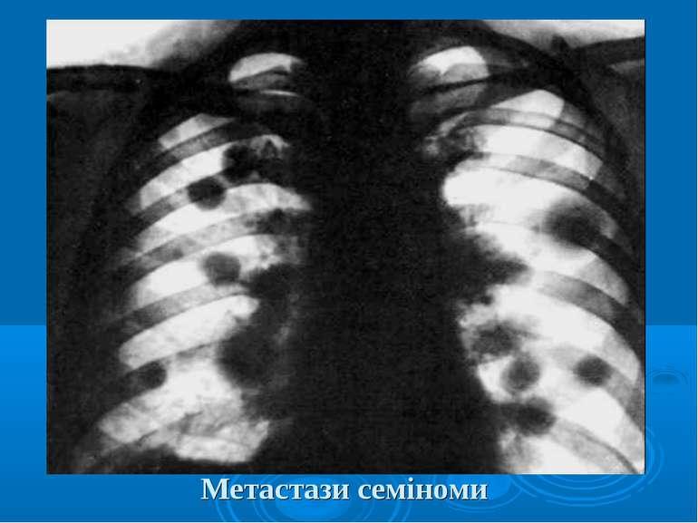 Метастази семіноми