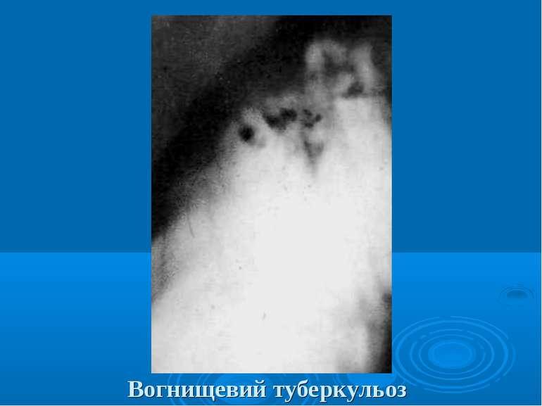 Вогнищевий туберкульоз