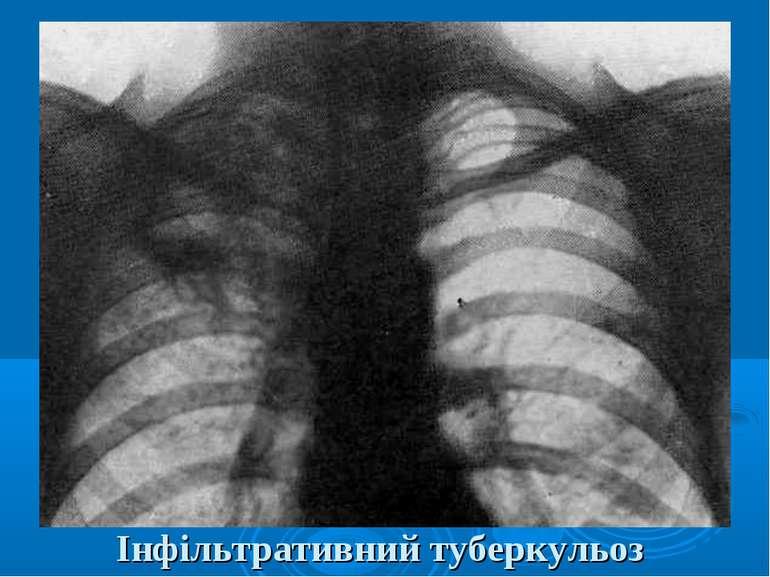 Інфільтративний туберкульоз