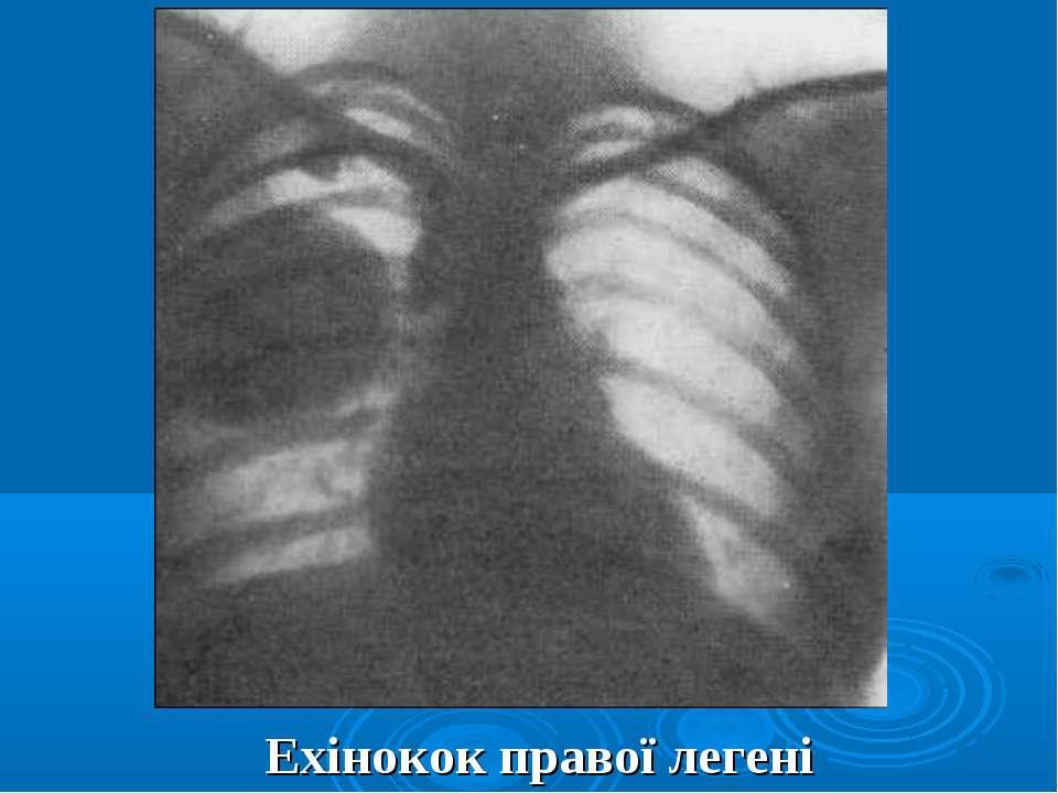 Ехінокок правої легені