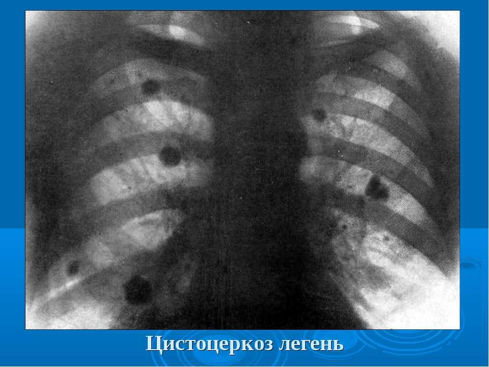 Цистоцеркоз легень