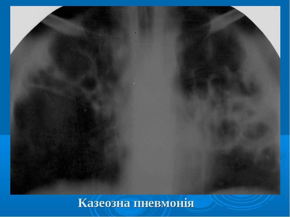 Казеозна пневмонія