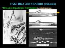 ТАКТИКА ЛІКУВАННЯ (емболія) Тільки оперативне лікування (емболектомія)