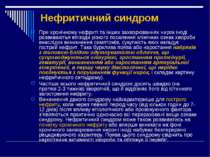 Нефритичний синдром При хронічному нефриті та інших захворюваннях нирок іноді...