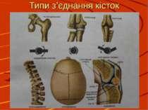 Типи з'єднання кісток