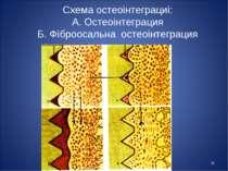 * Схема остеоінтеграциі: А. Остеоінтеграция Б. Фіброосальна остеоінтеграция