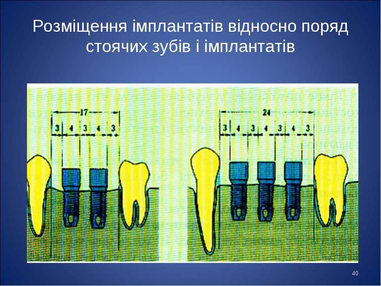 * Розміщення імплантатів відносно поряд стоячих зубів і імплантатів