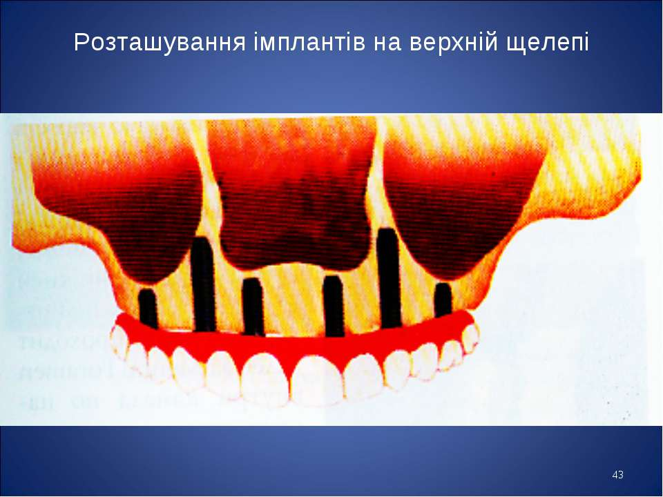 * Розташування імплантів на верхній щелепі