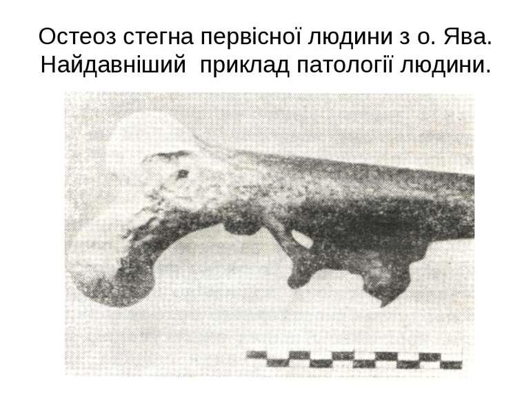 Остеоз стегна первісної людини з о. Ява. Найдавніший приклад патології людини.