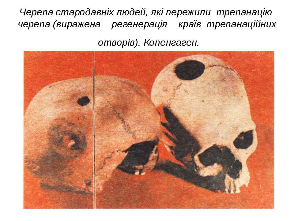 Черепа стародавніх людей, які пережили трепанацію черепа (виражена регенераці...