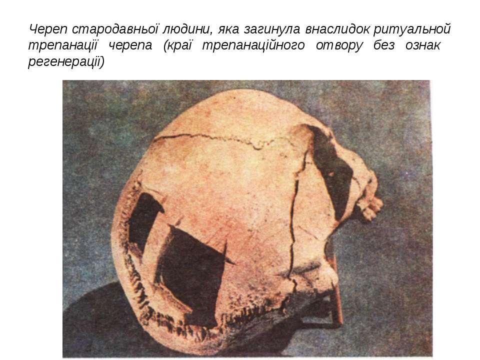 Череп стародавньої людини, яка загинула внаслидок ритуальной трепанації череп...
