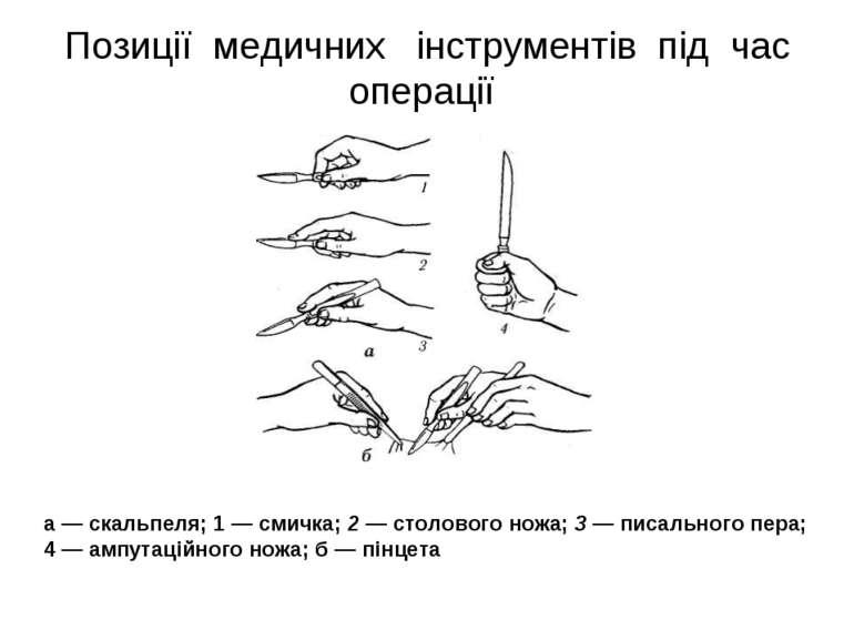 Позиції медичних інструментів під час операції а — скальпеля; 1 — смичка; 2 —...