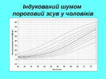 Індукований шумом пороговий зсув у чоловіків