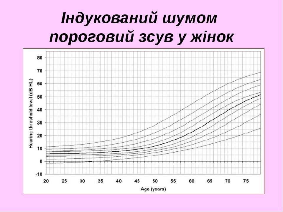 Індукований шумом пороговий зсув у жінок