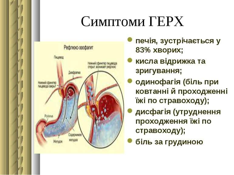 Симптоми ГЕРХ печія, зустрічається у 83% хворих; кисла відрижка та зригування...