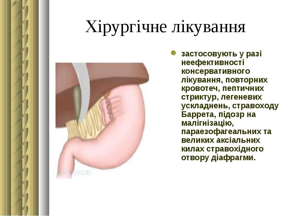 Хірургічне лікування застосовують у разі неефективності консервативного лікув...
