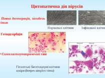 Цитопатична дія вірусів Повна дегенерація, загибель клітин Симпластоутворюючи...