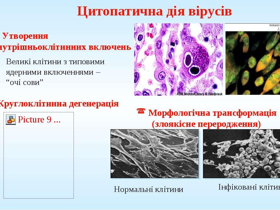 Цитопатична дія вірусів Морфологічна трансформація (злоякісне переродження) У...