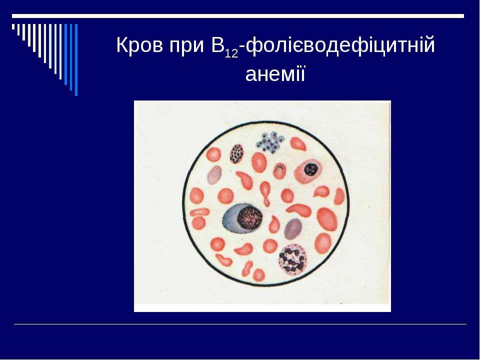 Кров при В12-фолієводефіцитній анемії