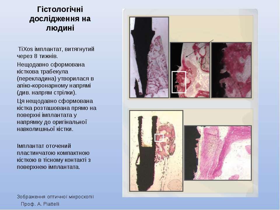 Гістологічні дослідження на людині TiXos імплантат, витягнутий через 8 тижні...