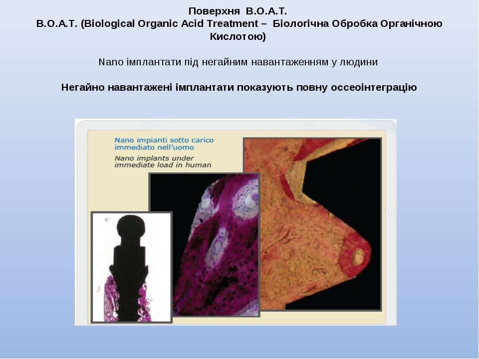 Поверхня В.О.А.Т. В.О.А.Т. (Biological Organic Acid Treatment – Біологічна Об...