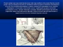 Розрізи шкіри при видаленні фасціального футляра шийної клітковини.Вертикальн...