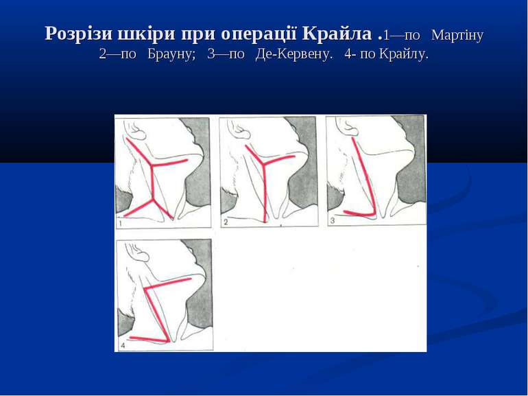Розрізи шкіри при операції Крайла .1—по Мартіну 2—по Брауну; 3—по Де-Кервену....