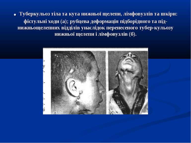. Туберкульоз тіла та кута нижньої щелепи, лімфовузлів та шкіри: фістульні хо...