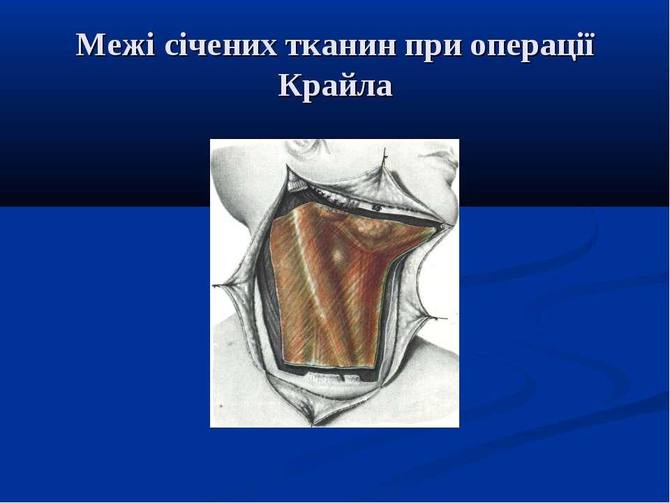 Межі січених тканин при операції Крайла
