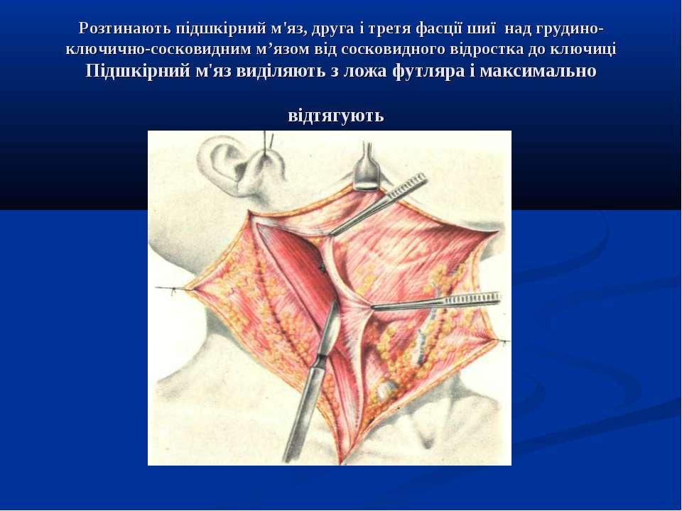 Розтинають підшкірний м'яз, друга і третя фасції шиї над грудино-ключично-сос...