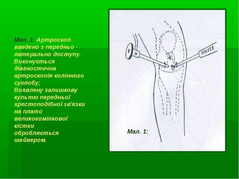 Мал. 1: Артроскоп введено з передньо - латерально доступу. Виконується діагно...
