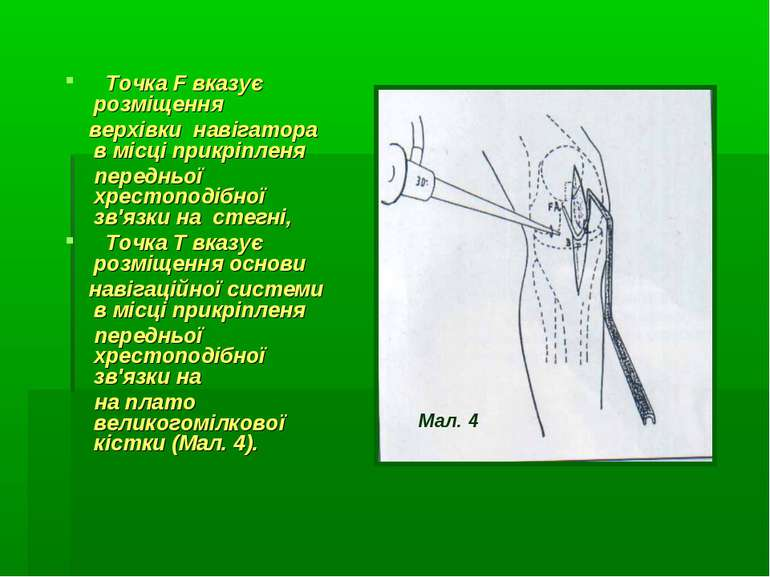 Точка F вказує розміщення верхівки навігатора в місці прикріпленя передньої х...