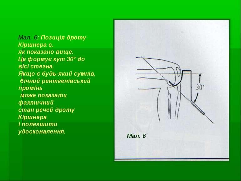 Мал. 6: Позиція дроту Кіршнера є, як показано вище. Це формує кут 30° до вісі...