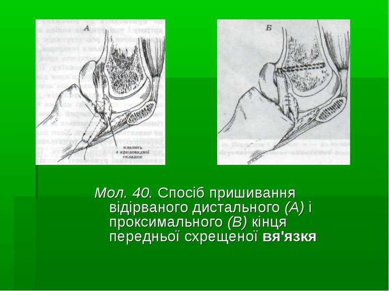 Мол. 40. Спосіб пришивання відірваного дистального (А) і проксимального (В) к...