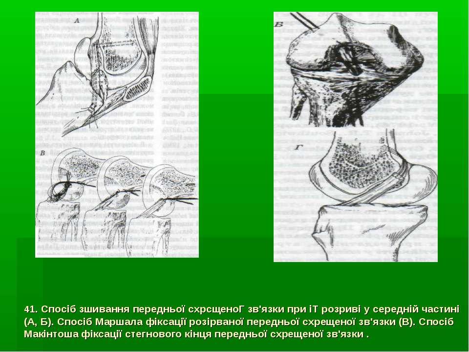 41. Спосіб зшивання передньої схрсщеноГ зв'язки при іТ розриві у середній час...
