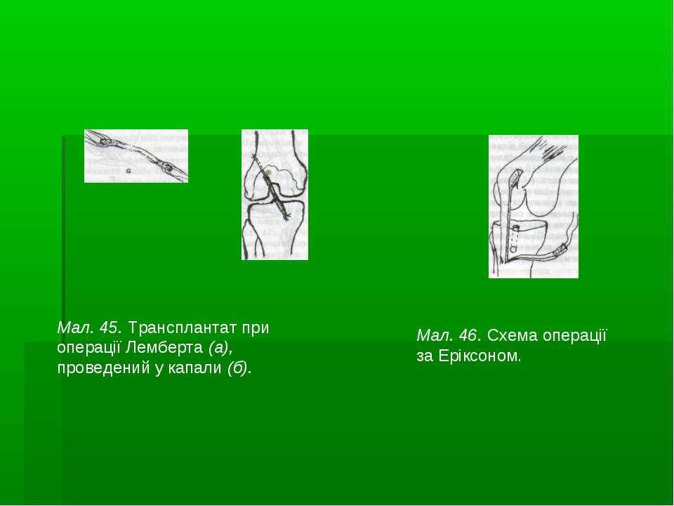 Мал. 45. Трансплантат при операції Лемберта (а), проведений у капали (б). Мал...