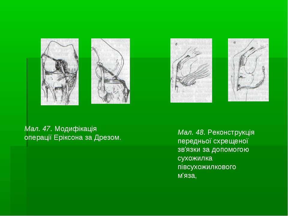Мал. 47. Модифікація операції Еріксона за Дрезом. Мал. 48. Реконструкція пере...
